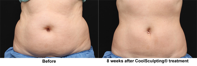 Coolsculpting in San Jose CA | Before and After Coolsculpting in San Jose