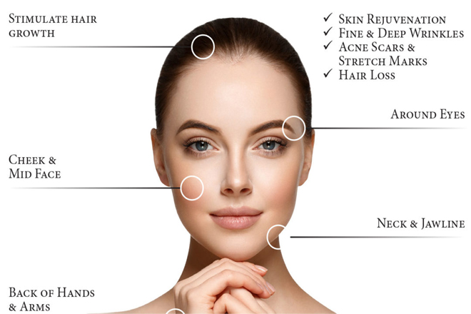 PRP/Microneedling - Best Hair Restoration and Transplant in San Jose